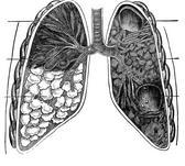 obat paru-paru alami dan aman