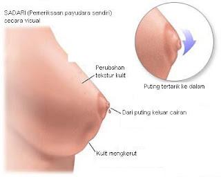 rahasia payudara