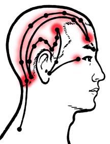 Headache Pain Above Left Eye - Doctor answers on HealthTap
