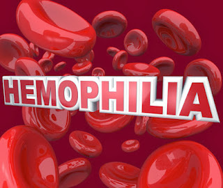 Hemophilia Signs, Symptoms, Causes, Diagnosis, Treatment, Prevention, Complications