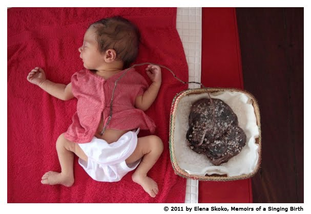 Taking Placenta Home From Hospital