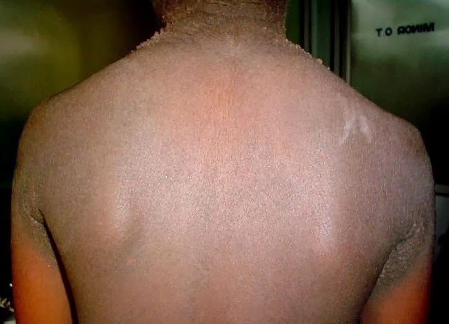 Acanthosis nigricans - Pictures - Treatment