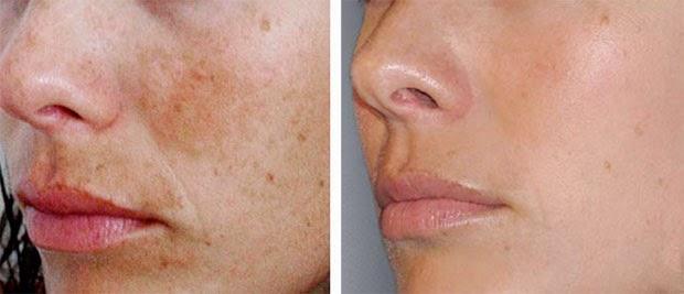 Como librarse de oscuro las manchas en la piel