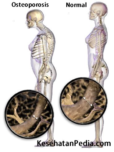 Osteoporosis - Pengeroposan Tulang