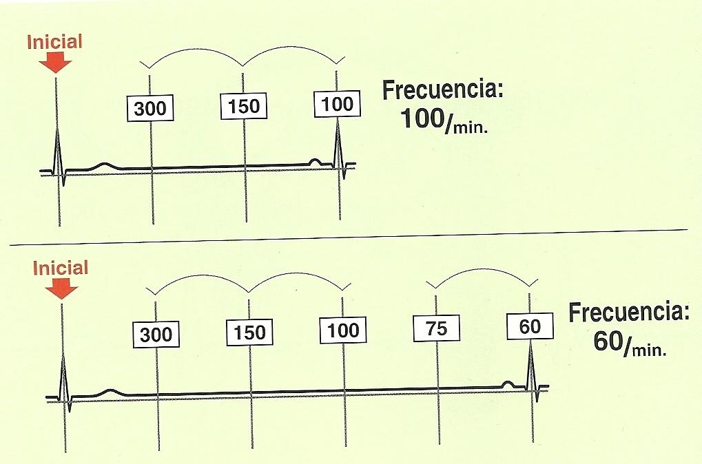 Aprende a calcular la Frecuencia Cardíaca de 3 formas diferentes en ...