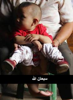 صور لطفل لديه ذيل من الخلف..سبحان الله!