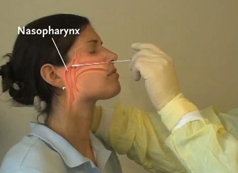 Зачем берут у беременных мазок с носа