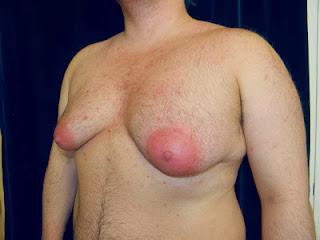 Sacramento, California Gynecomastia surgery
