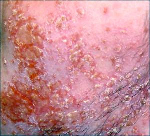 Yeast Fungal Infection On Skin