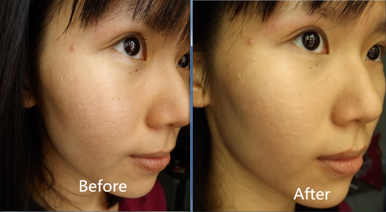 Makeup Covering Depressed Scars With Makeup Without