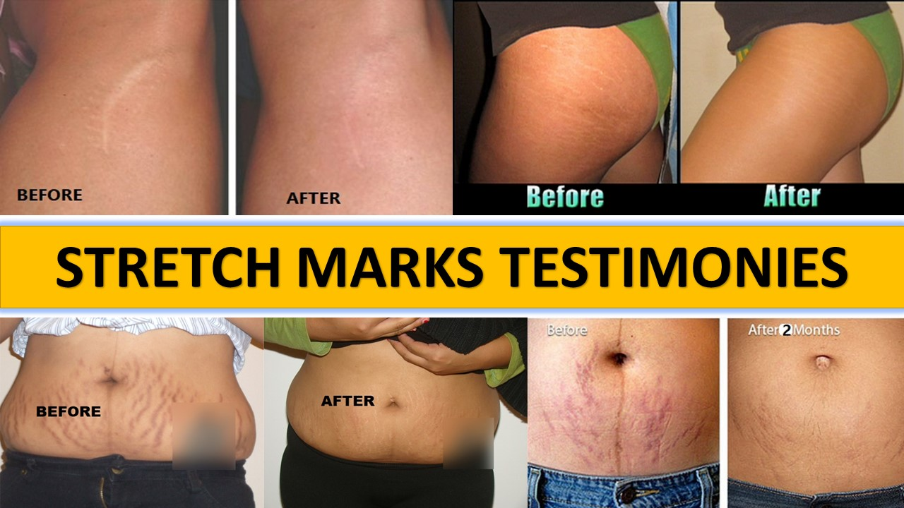 HOW TO REMOVE STRETCH MARKS