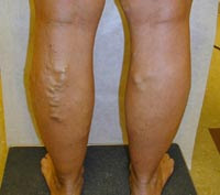 Sintomi di thrombophlebitis a donne