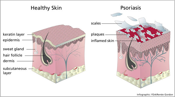 The Psoriasis and Arthritis ConnectionFlexitol Eczema & Psoriasis Cream Review 2