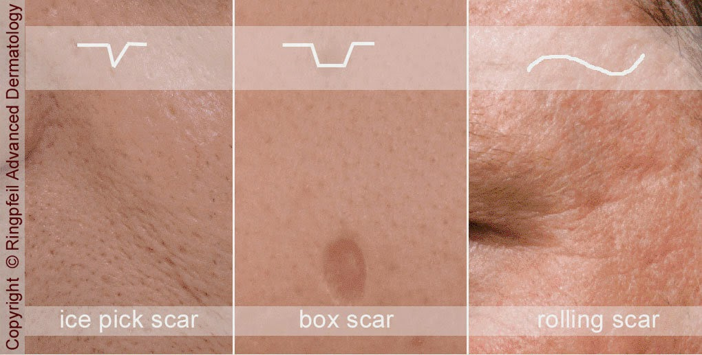 Acne Scar Types