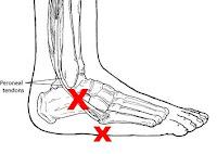 269850 Leg Bones Cartoon furthermore The Rom Of Major Joints furthermore Prepatellar Bursitis additionally 823589 Clinical in addition Humerus Fracture. on knee bones diagram