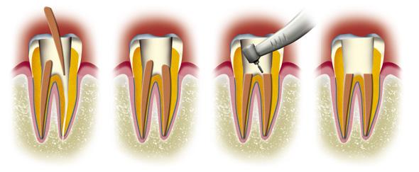 Devitaliser une dent