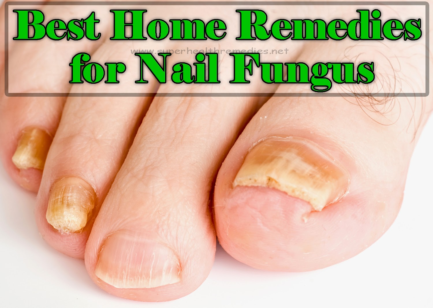 Best Home Remedies for Nail Fungus   Super Health Remedies