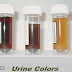 5 Urine Colors That Tells You How Your Body Works !