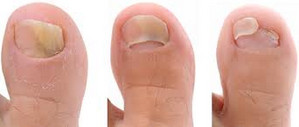 toenail fungus pictures treatment and home remedies