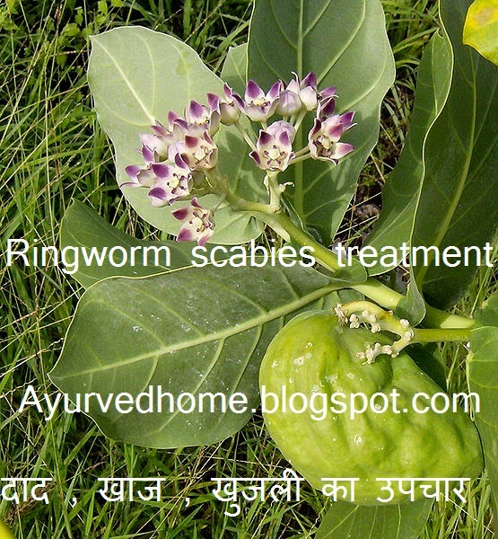 Ringworm and scabies treatment in hindi