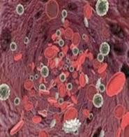 obat penyakit kanker darah