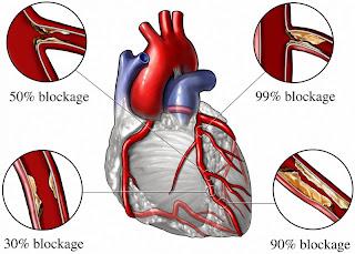 What Causes Angina? Angina and Coronary Heart Disease