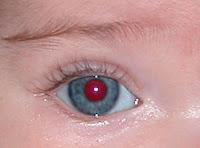 Photoshop: corrección efecto ojos rojos