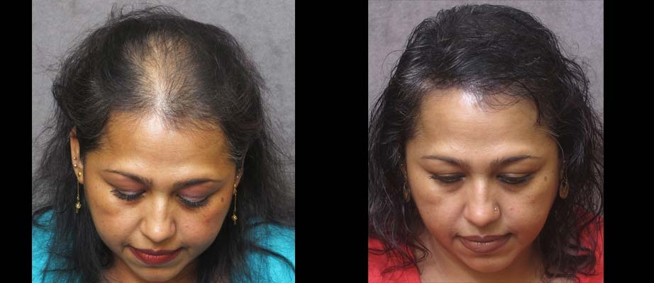 Beautytiptoday.com: Unbelievable: Tattoo Hair Pigmentation Gives ...