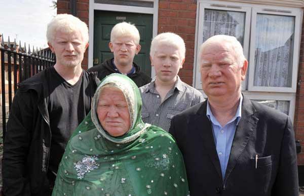 albino muslim