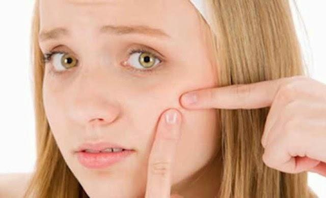 Cara Tradisional Menghilangkan Bopeng Pada Muka