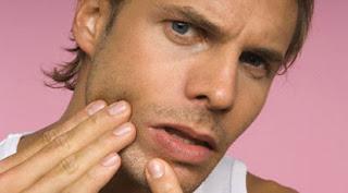 Wajah anda penuh dengan jerawat dan bekasnya? Lalu bagaimana Cara menghilangkan jerawat pada wajah anda dengan cepat dan alami? Wajah penuh jerawat dan berbekas memang menghilangkan dan membersihkanya membutuhkan waktu yang lama tidak cepat untuk menyembuhkanya.tentunya Dengan cepat obat herbal, cara perawatan wajah menggunakan obat kimia dan lain sebagainya. Jerawat adalah mimpi buruk jika terdapat pada wajah. Cepat atau lambat pasti menurunkan kepercayaan diri apalagi jerawat terdapat pada kulit wajah wanita. Bagaimana mungkin anda pede dengan jerawat pada kulit wajah anda? Yang pasti dengan cepat minder dan menghilang dalam pergaulan dengan teman-teman karena permasalahan kecil jerawat pada wajah anda . wajah kulit bersih adalah idaman wanita maupun pria. Berbagai macam cara tetapi masih timbul jerawat pada wajah anda? Coba perhatikan faktor munculnya jerawat pada kulit wajah anda.  Ada beberapa faktor munculnya dan timbulnya jerawat pada kulit wajah. Terbagi menjadi 2 faktor timbulnya jerawat. Yaitu faktor internal dan eksternal.