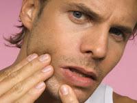 Cara menghilangkan jerawat pada kulit wajah dengan cepat