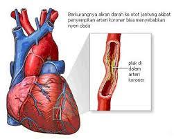 Cara Alami Mengobati Penyakit Jantung