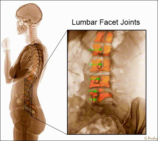 Oblique Lumbar Spine Color X-Ray of the Lumbar Facet Joints