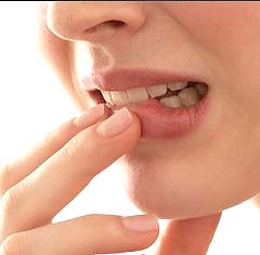Cara Mudah Mengatasi Bibir Kering Dan Penyebabnya