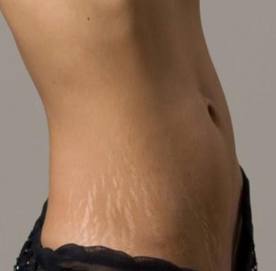 gebelikte cilt çatlakları, hamilelikte cilt sorunları