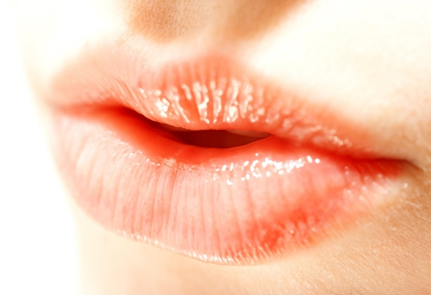 pictures of cold sore cures