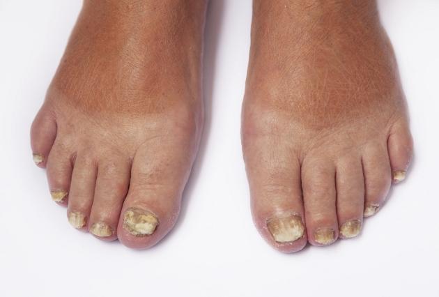 Que medio es mejor al tratamiento del hongo de las uñas