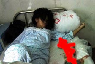 Kisah Memilukan, Seorang Ibu di China Melakukan Aborsi