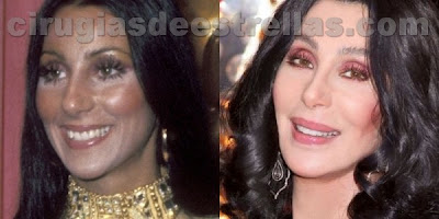cher antes y despues