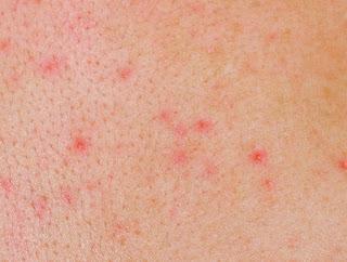 Remedio Para Eliminar El Herpes