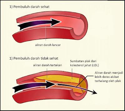 saluran jantung tersumbat