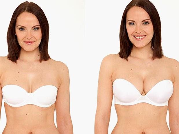 Como selecionar o peito implanta um fórum