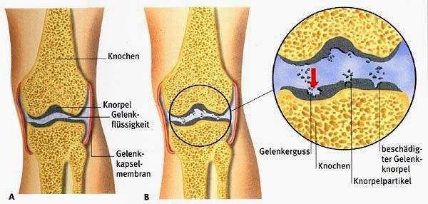 zacht kraakbeen knie