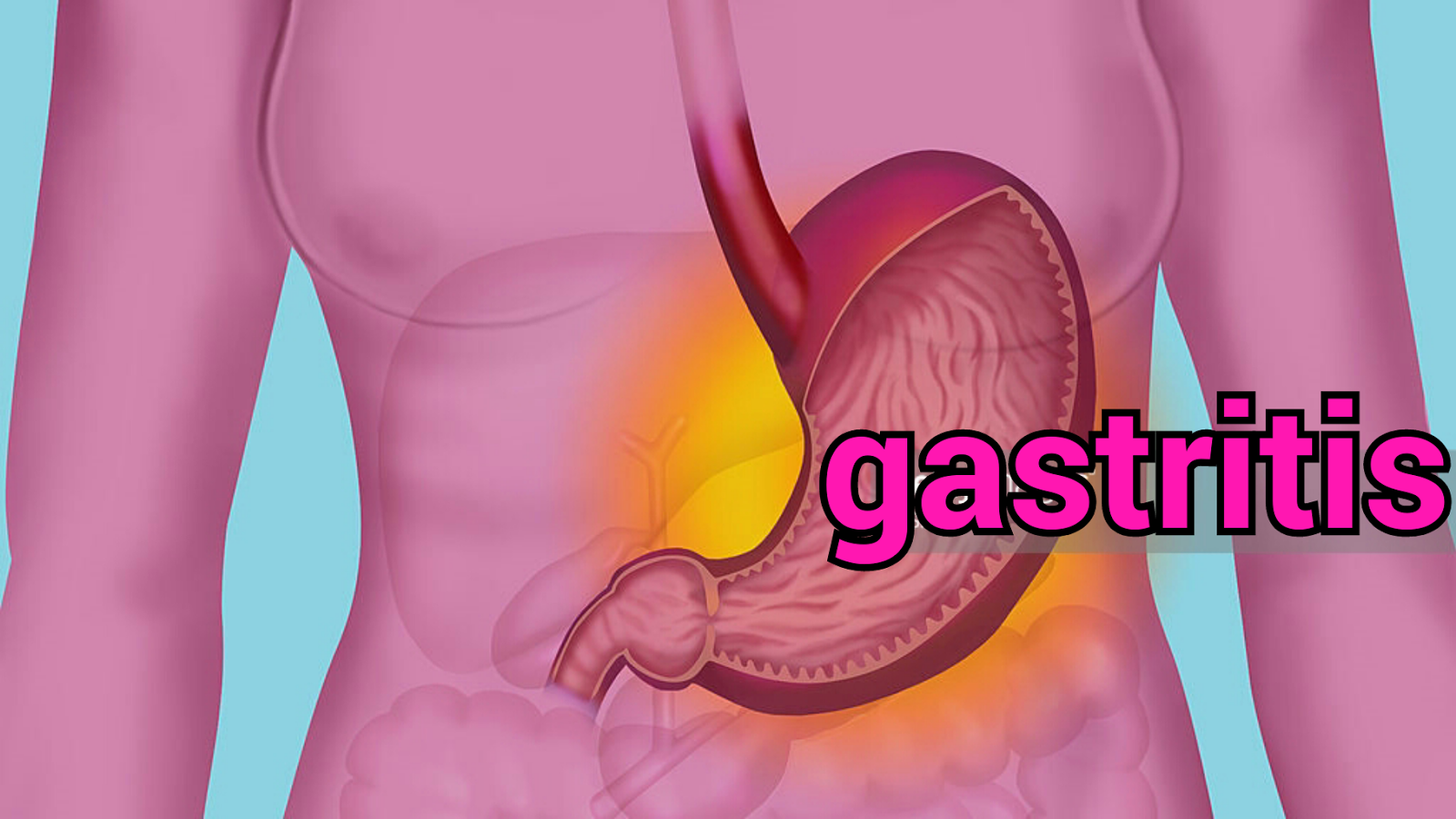 Symptoms of chronic gastritis. Disease treatment and prevention