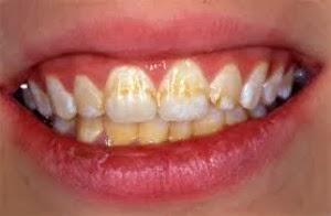 remover-manchas-dentes