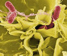 Jenis – Jenis Bakteri Yang Terdapat di Toilet - Jenis – Jenis Bakteri Yang Terdapat di Toilet