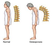 http://osteoporosistradisionalobat.blogspot.co.id/2015/10/mari-mengenal-tipe-tipe-osteoporosis.html