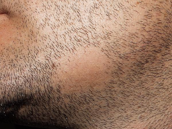 Que aceites se puede usar para las máscaras de los cabello