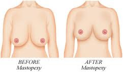 Cost breast uplift UK
